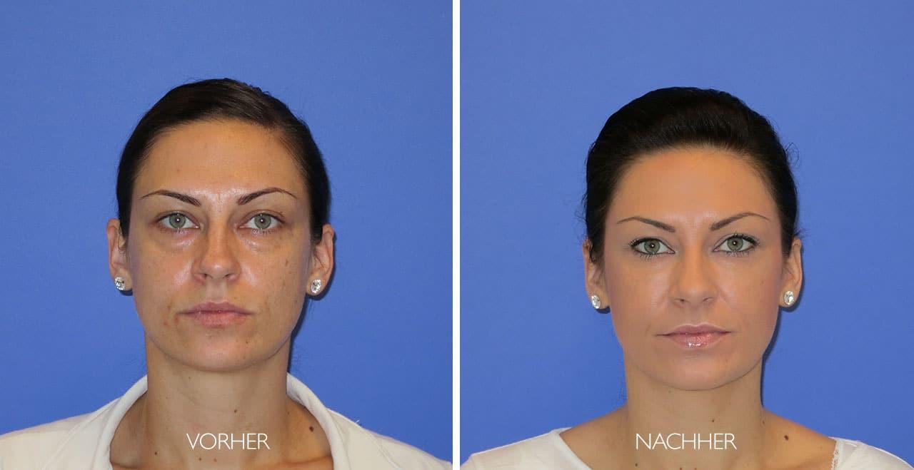 Tränensäcke-Behandlung Vorher-Nachher Foto