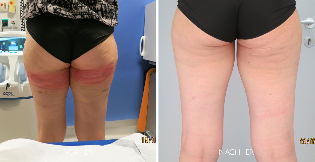 Ultrafaden-Behandlung Vorher-Nachher Foto